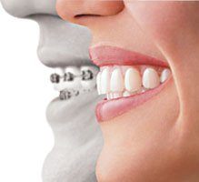 New Invisalign Treatment