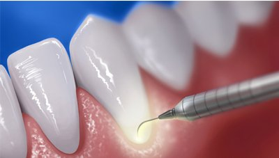 Dental Laser therapy